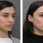 Ринопластика: показания и способы проведения операции по исправлению формы носа